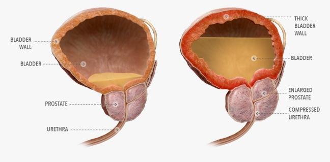 normal-bph-bladder-diagram