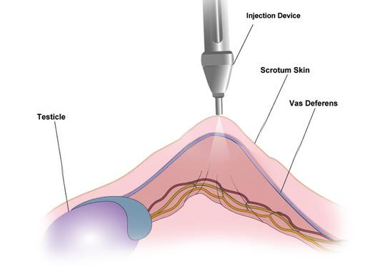 No Needle No Scalpel Vasectomy – Northeast Georgia ... No Scalpel Vasectomy