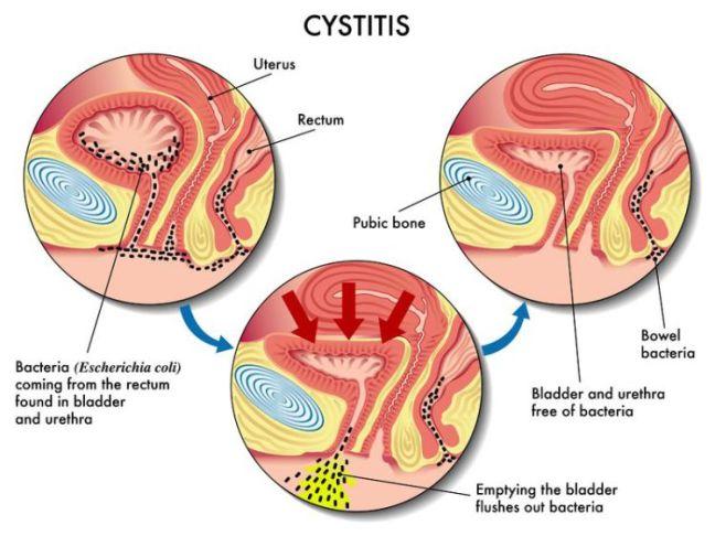 Five home remedies of bladder infections. – Northeast Georgia Urological  Associates