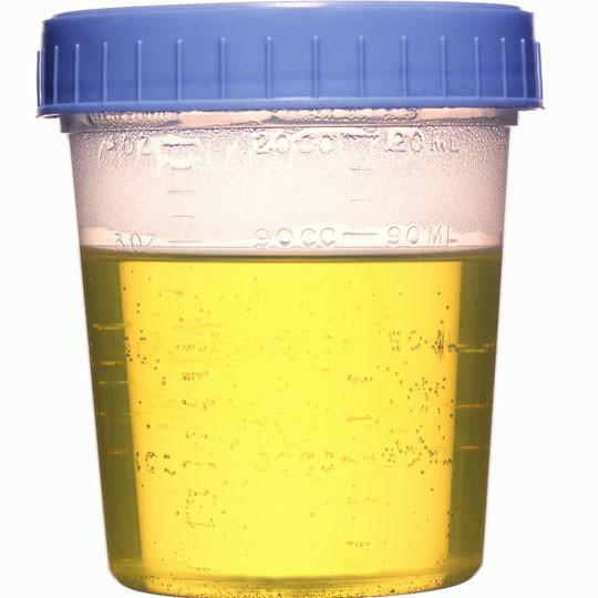 urine-specimen-cup__44522_0924aa8b-864a-47df-936f-58d9cebdbf21